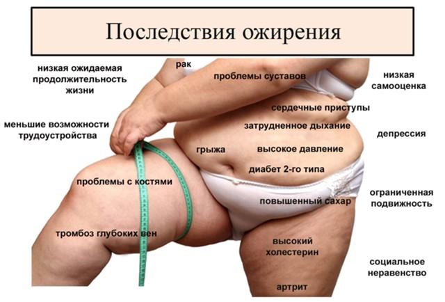 Росстат: ожирение косит